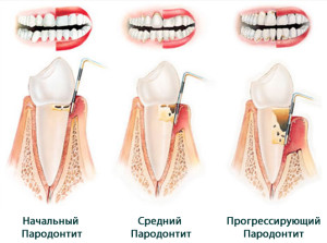 parodontit_1
